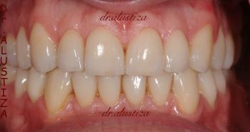 clinica dental alustiza reparación dental