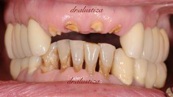 clinica dental bilbao alustiza traumatismo