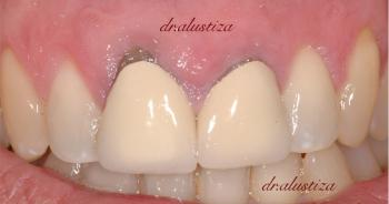 clinica dental alustiza bilbao implantes dentales atornillados