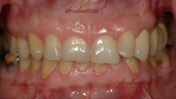 clinica dental alustiza bilbao implantes dentales