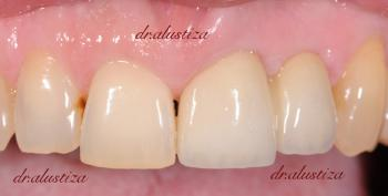 clinica dental bilbao alustiza implantes zirconio