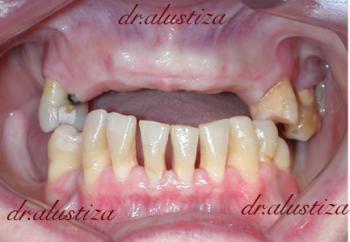 clinica dental bilbao alustiza extraccion e implantes