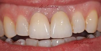 clinica dental alustiza bilbao coronas de ceramica completas