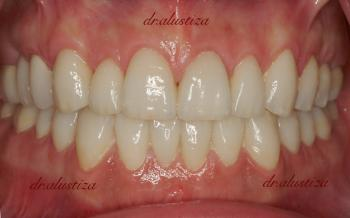 clinica dental alustiza implantes dentales fijos