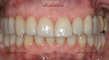Clinica dental alustiza implantes dentales despues