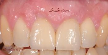 clinica dental alustiza bilbao protesis