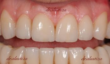 clinica dental alustiza ortodoncia despues