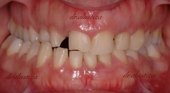 clinica dental alustiza bilbao desgaste dental