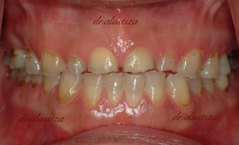 clinica dental alustiza bilbao desgaste implantes dentales