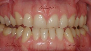 clinica dental alustiza bilbao carillas