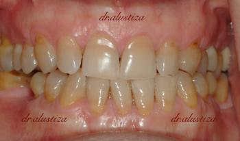 clinica dental alustiza bilbao desgaste dental