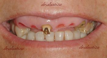 clinica dentales alustiza antes de implantes
