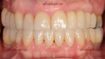 clinica dental bilbao alustiza recontruccion de piezas dentales