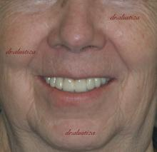 clinica dental alustiza bilbao implantes dentales resultado
