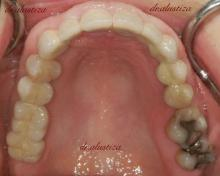 clinica dental alustiza implantes dentales