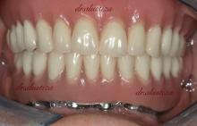 clinica dental alustiza bilbao protesis fija